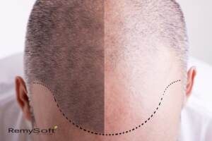 Consider full cap and partial cap hair replacement to cover balding.